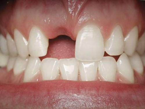 Chịu trống răng 1 tháng để kiếm tiền Trồng Implant