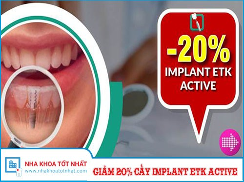 Nha Khoa Đông Nam Giảm 20% Chi Phí Cấy Ghép Implant ETK Active Nhân Dịp 30/4 Và 1/5