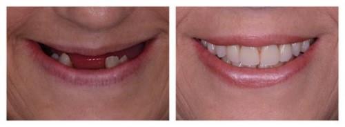 Kinh Nghiệm Từng Trải - Mất Răng Đau Hơn Trồng Răng Implant