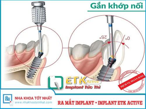 Nha Khoa Đông Nam Ưu Đãi 20% Cấy Ghép Implant ETK Active