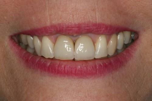 Nhổ Răng Và Trồng Răng Implant Trong Vòng 3 Tuần