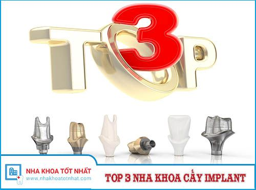 [REVIEW] Top 3 Nha Khoa Cấy Implant Tại Hà Nội