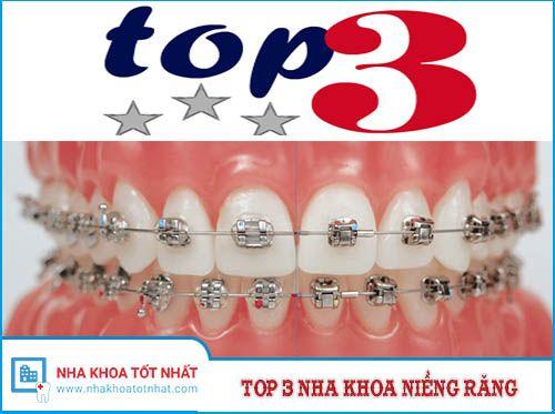 [REVIEW] Top 3 Nha Khoa Chỉnh Nha - Niềng Răng Tại Hà Nội