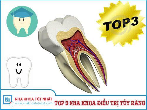 [REVIEW] Top 3 Nha Khoa Điều Trị Tủy Răng Tại Hà Nội