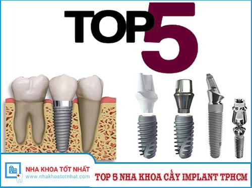 [REVIEW] Top 5 Nha Khoa Cấy Implant Tại TPHCM