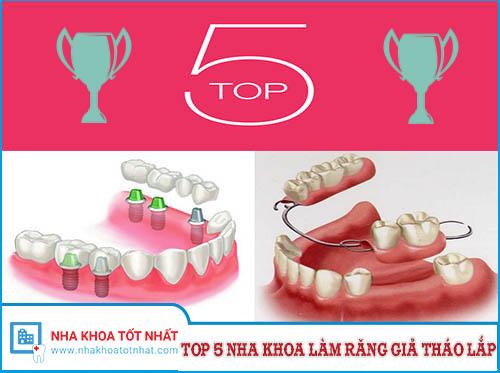 [REVIEW] Top 5 Nha Khoa Làm Răng Giả Tháo Lắp Tại TPHCM