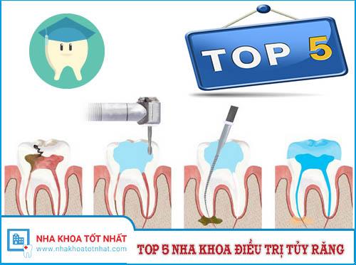 [REVIEW] Top 5 Nha Khoa Điều Trị Tủy Răng Tại TPHCM