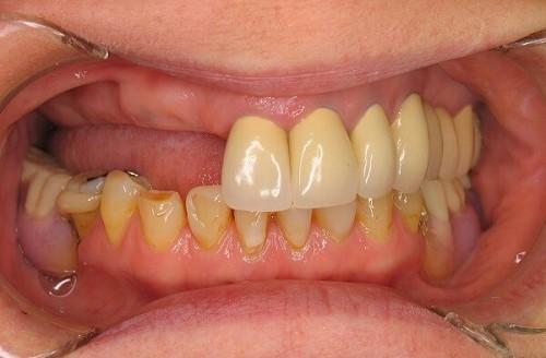 Trồng răng Implant tiết kiệm chi phí rất nhiều